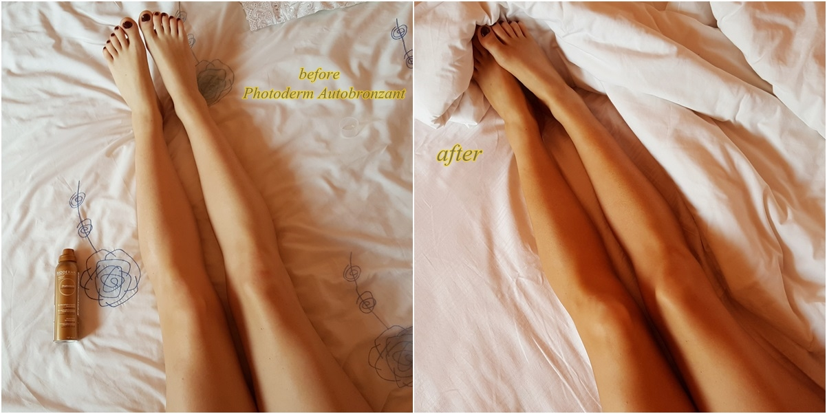 before and after.photoderm.Autobronzant