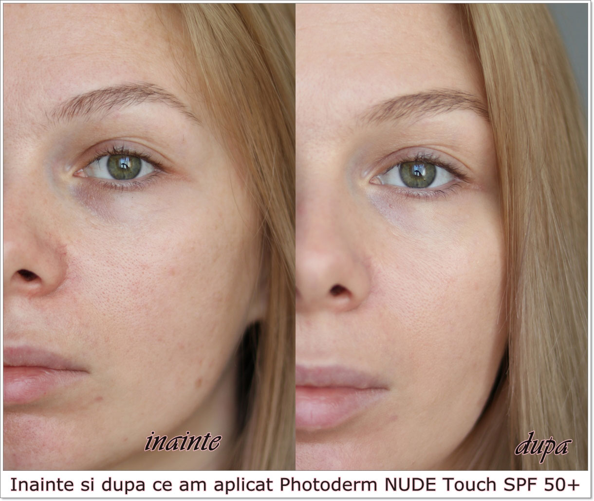 BIODERMA.Photoderm.before.and.after